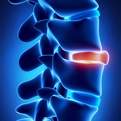 Slipped Disc Treatment in Overland Park